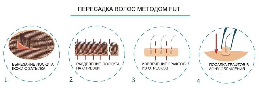Пересадка волос методом FUT